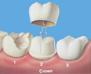 Tampa Dental Crowns | Dentisty Tampa | 813.839.2273 - Dr Marnie Bauer is a general dentist specializing in dental crowns in Tampa / South Tampa and the surrounding area. - Tampa FL Dental Crown Specialists