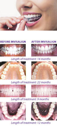 Invisalign Tampa Florida FL - Dr Marnie Bauer is a general dentist specializing in Invisalign / orthodontics in Tampa / South Tampa and the surrounding area. - Tampa FL Invisalign Specialists