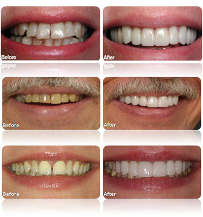 Porcelain Veneers Tampa FL | Dentist Tampa | 813.839.2273 - Tampa Porcelain Veneers Dentist Tampa FL Florida - Dr Marnie Bauer is a general dentist specializing in porcelain veneers in Tampa / South Tampa and the surrounding area. - Tampa Porcelain Veneers Specialists